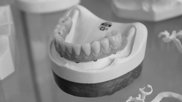 歯 入れ歯